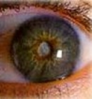 A dense cataract seen through a normal pupil