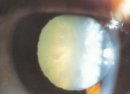 A snowflake cataract